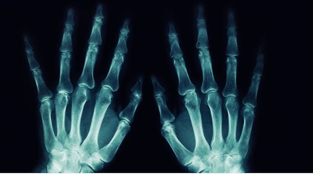 الأشعة السينية: اختراق الأشعة