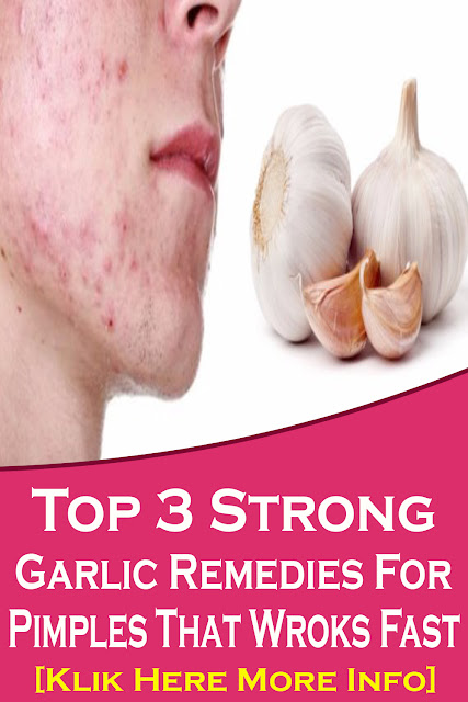 Top 3 Strong Garlic Remedies For Pimples That Wroks Fast
