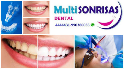 Blanqueamiento Dental - Multisonrisas