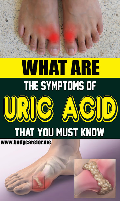 What Are The Symptoms Of Uric Acid