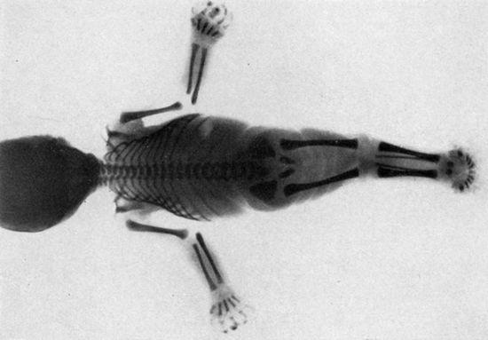 I miti delle sirene sono ispirati da una rara condizione medica?