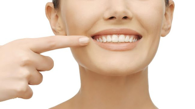 5 Cara Ampuh Memutihkan Gigi