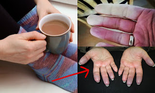 Are Your Hands and Feet Are Always Cold?  It Maybe A Cause of A Serious Disease
