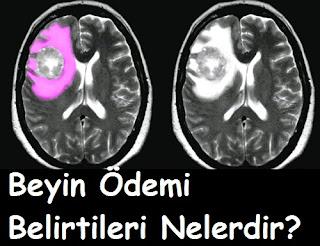 Beyin Ödemi Belirtileri Nelerdir