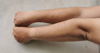 Kulit Tangan sebelum menggunakan scarlett Body care