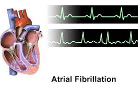 According to a study held in 138 German medical centers on 6876 chronic heart patients, it was discovered that occurrences of moderate to severe sleep apnea was 46 %, whereas this frequency was 49% in males and 36% in females.  The threatening factors were atrial fibrillation, male sex, age, left ventricular dysfunction and body mass index.