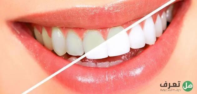 هل تعرف ما هو تبييض الأسنان..؟