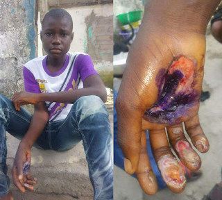 Photos: Woman burns her grandson