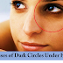 What are the causes of Dark Circle Under Eyes?