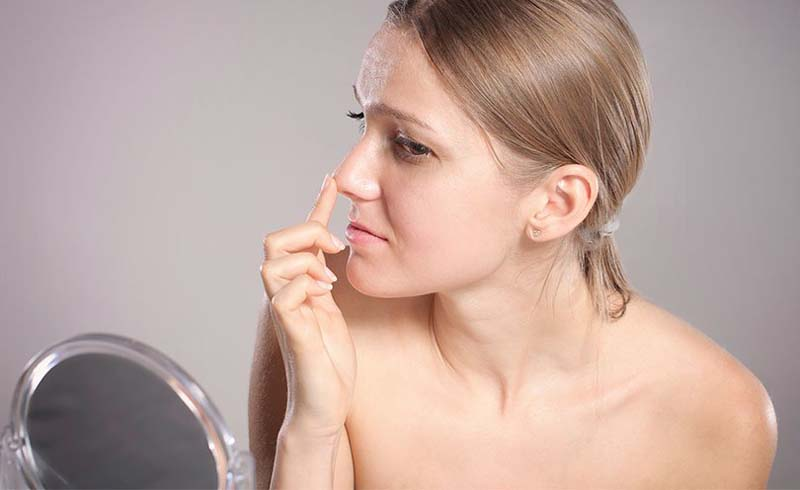How to Get Rid of Blackheads on Your Nose, Chin and Forehead