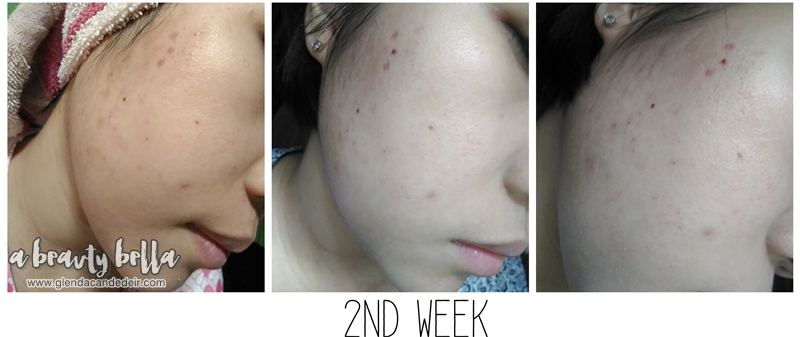 Proactiv Review Does This Thing Really Work A Beauty Bella