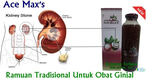 Ramuan Tradisional Untuk Obat Ginjal