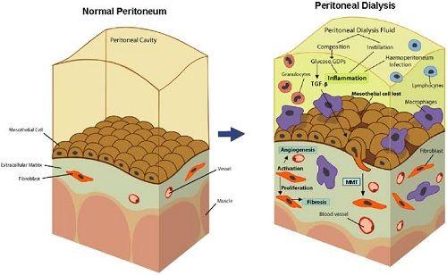 Peritoneal Mesothelium