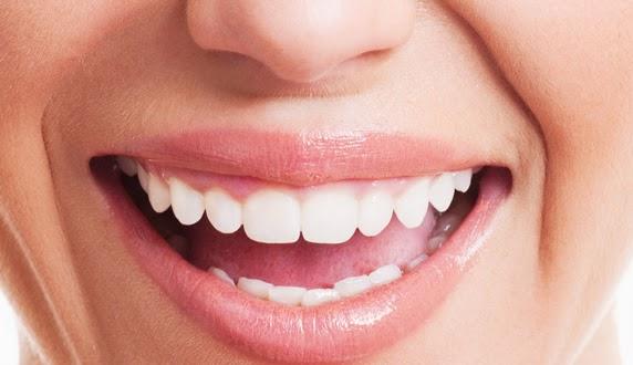 Tips Menghilangkan Bau Mulut