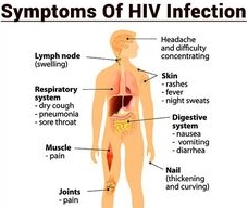 hiv symptoms in men | click healthy, Skeleton
