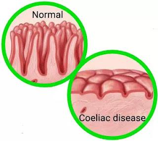 Gambar ilustrasi lapisan usus normal serta lapisan usus yang telah mengalami Coeliac.