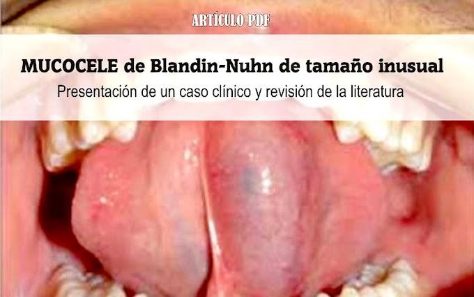 PDF: MUCOCELE de Blandin-Nuhn de tamaño inusual: Presentación de un caso clínico y revisión de la literatura