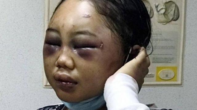 Astagfirullah! Dipukuli Pakai Palu hingga Disuruh Tidur dengan Anjing, Inilah Kisah Pilu Kekerasan Terhadap TKW Indonesia
