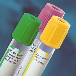 alt testi için kan alma tüpleri