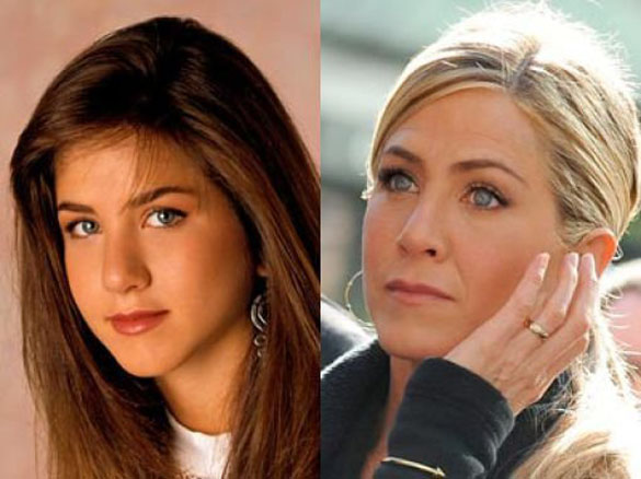 plastic surgery successful celebrity celebrity surgery before and