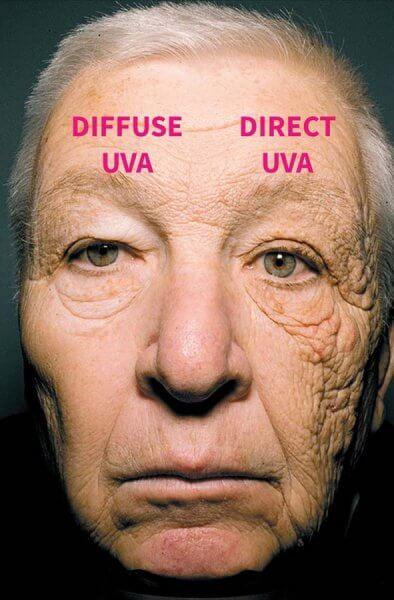 Bức ảnh nổi tiếng về tác hại của tia UVA xuyên qua cửa kính