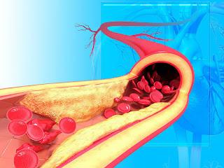 Bahaya salur darah tersumbat
