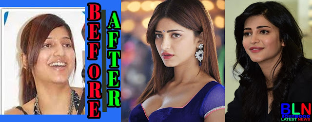SHRUTI HAASAN Bollywood Actresses Before and After Plastic Surgery