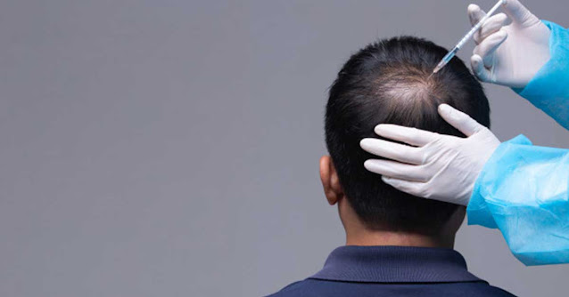 FUT vs FUE - Which Hair Transplant Is Right For You