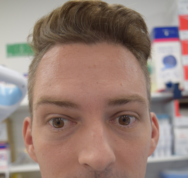 Client wrinkling his forehead after treatment with xeomin on the Gold Coast.