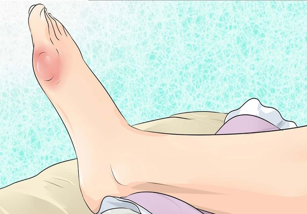 How to EFFECTIVELY prevent gout and joint pain by removing uric acid crystallization from the body