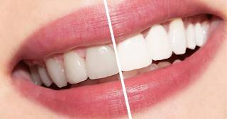 Bisa Dilakukan Di Rumah! Intip Cara Cerdas Memutihkan Gigi Dengan Bahan Alami