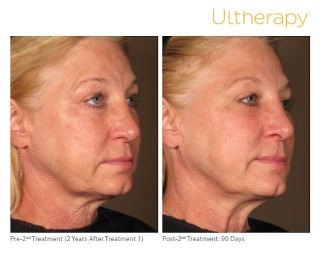 Ultherapy: Nonsurgical Alternative to Facelift