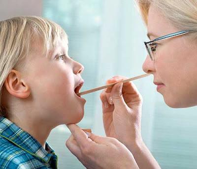 Cara mengobati sakit tenggorokan dengan cepat