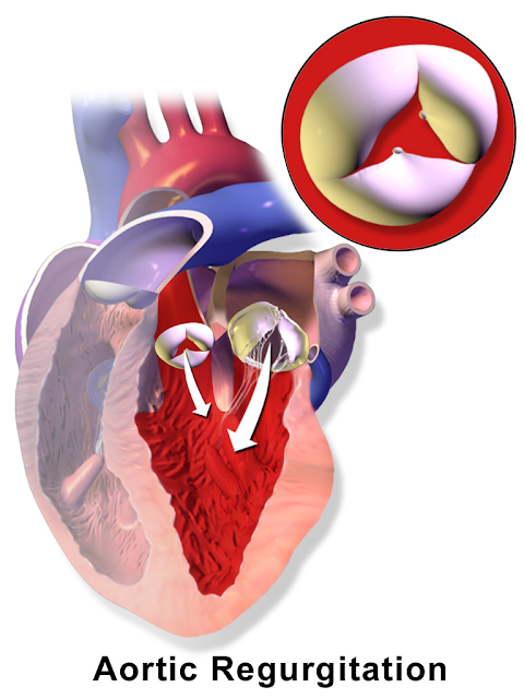 Gambaran Insufisiensi Aorta Aortic Regurgitation