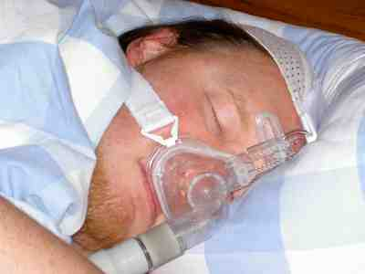 How to Treat Sleep Apnea - Learn Variety of Ways to Treat Your Apnea