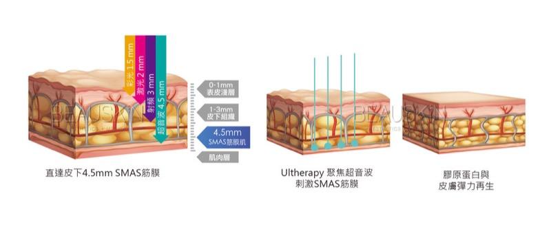 音波拉皮(HIFU)的加熱方式是直達皮下組織