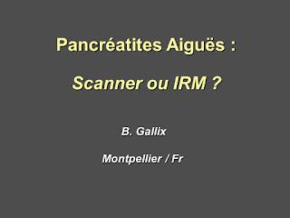 Pancréatites Aiguës : Scanner ou IRM ?.pdf