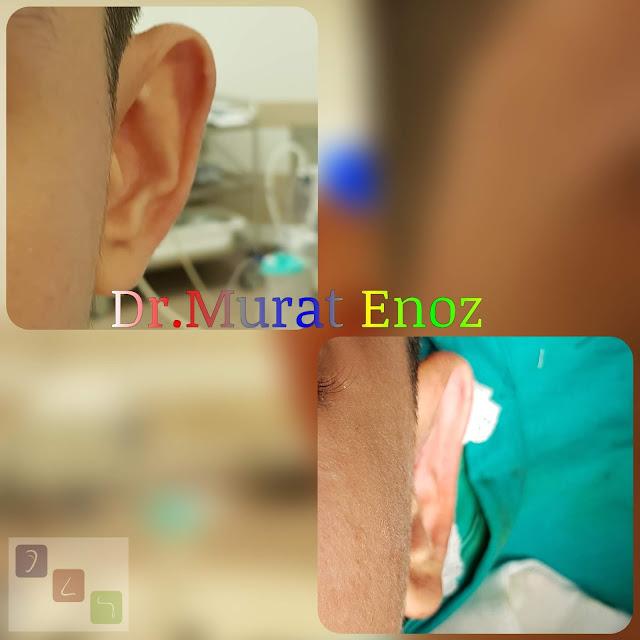kepçe kulak ameliyatı fiyatları 2021,kepçe kulak düzeltilmesi,kepçe kulak estetiği fiyatı,kulak kepçesi estetiği fiyatı,kepçe kulak tedavisi,