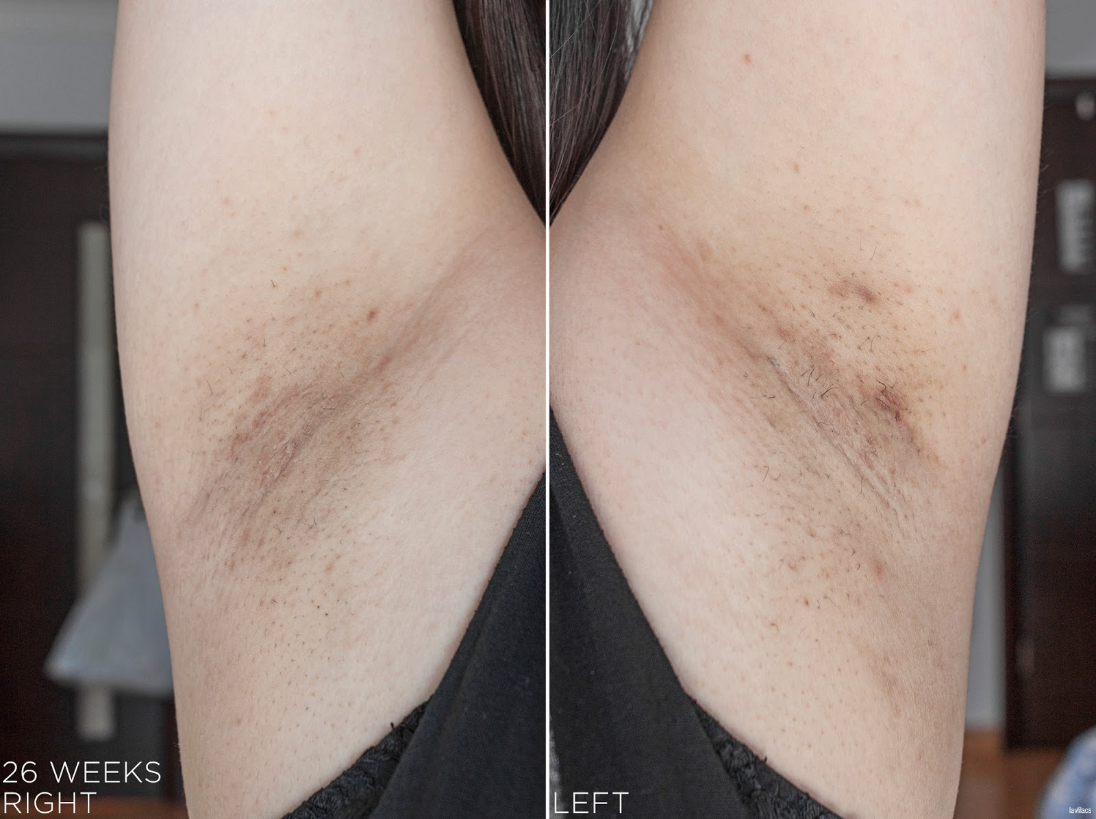 tria Hair Removal Laser Armpits Hair 26 Weeks, 6 months