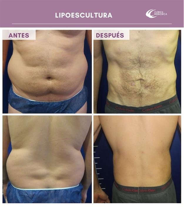 Lipoescultura circunferencial nueva cirugía corporal