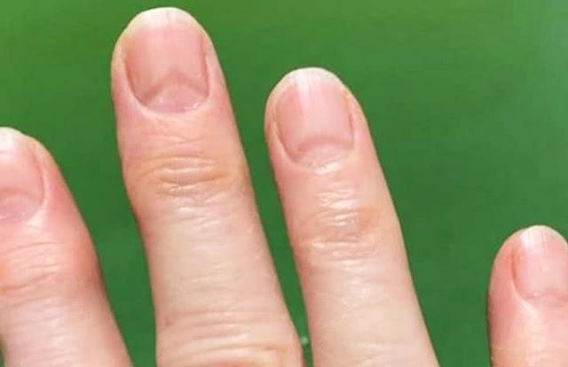 Marcas nas unhas podem indicar se você já pegou covid-19; entenda