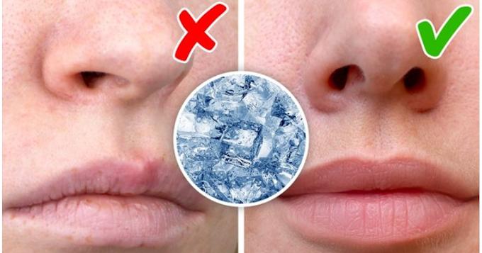 မျက်နှာကို ရေခဲတုံးလေးနဲ့ ပွတ်တိုက်ပေးရင် ဘယ်လိုအကျိုးကျေးဇူးတွေ ရလာမလဲ