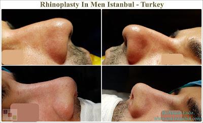 Rhinoplasty In Men,Rhinoplasty In Istanbul,Rhinoplasty In Turkey, Nose Job For Male