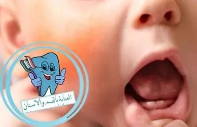 علاج فطريات الفم عند الاطفال عمر سنتين, علاج فطريات الفم عند الاطفال, علاج فطريات الفم عند الاطفال الرضع, علاج فطريات الفم عند الاطفال في المنزل, علاج فطريات الفم عند الاطفال بالاعشاب, علاج فطريات الفم عند الأطفال, علاج فطريات الفم عند الاطفال عمر سنه, كيفية علاج فطريات الفم عند الاطفال