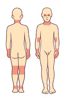 兒童異位性皮膚炎