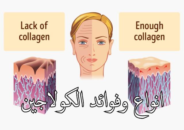 جلد صحى يحتوى على كولاجين و آخر غير صحي به نقص في الكولاجين