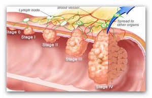 Colon Cancer Signs And Symptoms Treatment