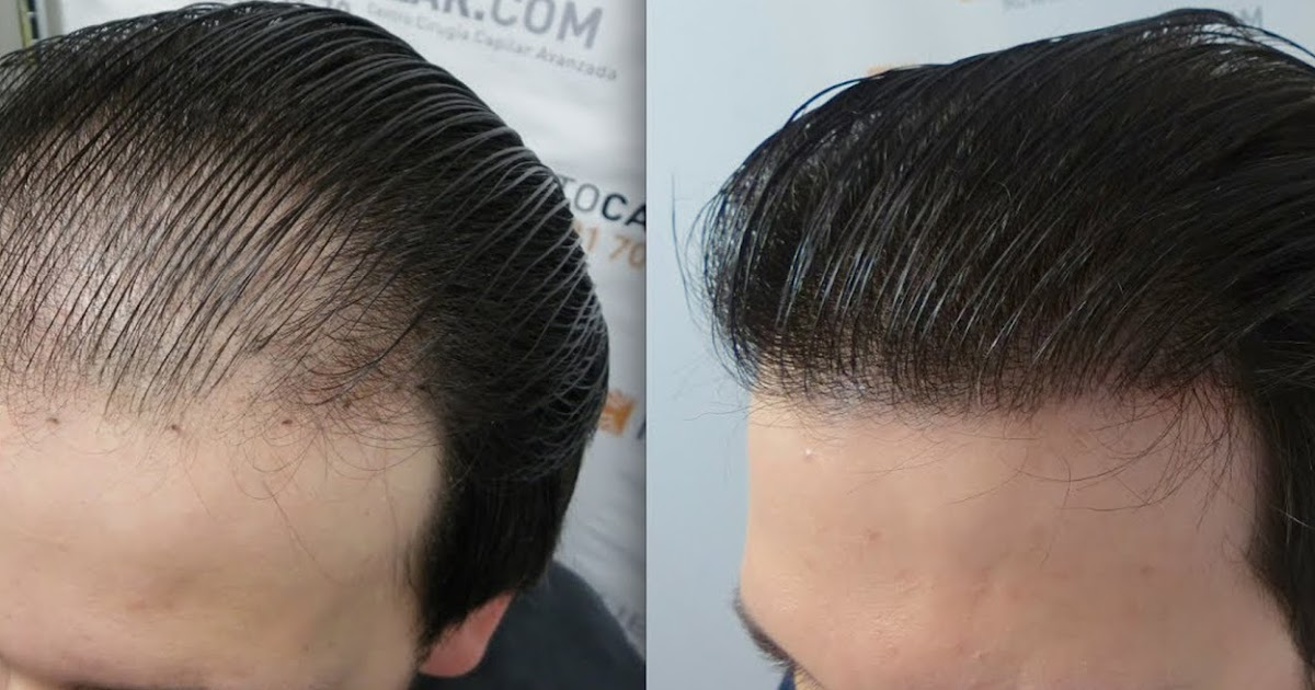 5 Permanent Solutions To Hair Loss Entire Tips