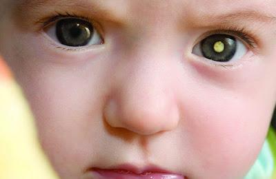4 Penyakit Turunan Pada Mata Anak yang Wajib di Waspadai