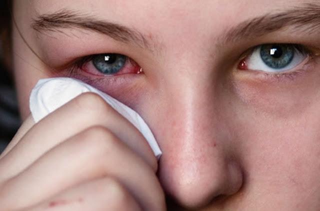 Banyak yang Percaya, Benarkah Mata Merah Bisa Menular Melalui Tatapan?